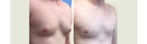 Женские гормоны для увеличения молочных желез у женщин