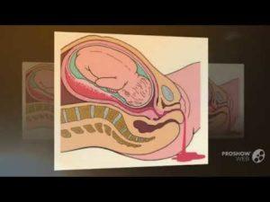 36 Неделя беременности режущие боли