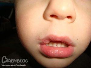 Как лечить губу разбитую изнутри