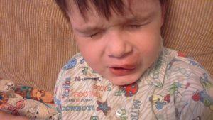 Ребенок разбил губу изнутри опухла