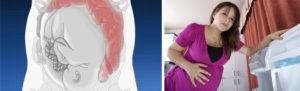 Жидкий стул на 32 неделе беременности
