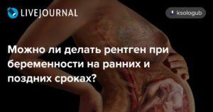 Можно ли при беременности делать рентген носа