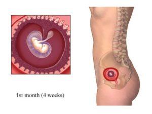 Четвертой неделе беременности болит живот