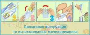 Как Прикрепить Мочеприемник Девочке Инструкция С Картинками