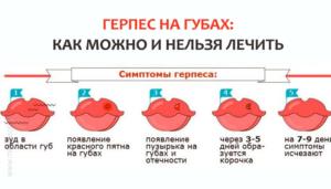 Простуда на губе при беременности 2 триместр последствия для малыша