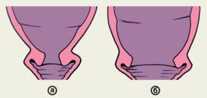 На 41 неделе беременности длинная шейка матки