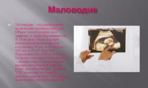 Маловодие на 35 неделе беременности отзывы