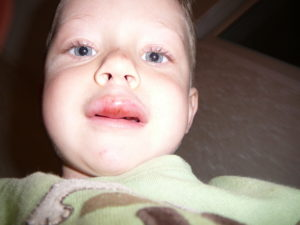 Ребенок прикусил губу чем обработать
