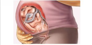 40 неделя беременности мало шевелится ребенок