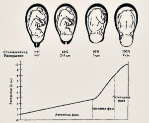 Раскрытие шейки матки на 2 пальца это сколько сантиметров