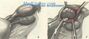Последствия Внематочной Беременности С Удалением Трубы