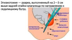 Эпизиоррафия что это при родах