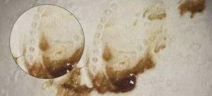 В период менопаузы коричневые выделения