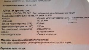Пульсационный индекс венозного протока 12 недель норма таблица