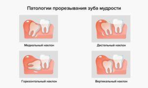 Как помочь зубу мудрости прорезаться