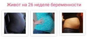 Боли Внизу Живота На 26 Неделе Беременности