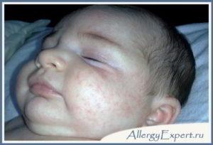 Непереносимость грудного молока симптомы у грудных детей