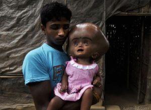 Ребенок с большой головой родился