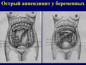 Аппендицит при беременности симптомы форум