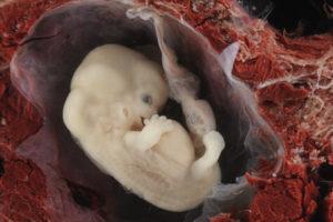 Эмбрион человека 7 недель фото