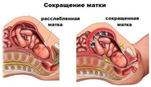 Тонус матки на 19 неделе беременности признаки и симптомы
