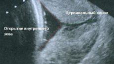 Раскрытие внутреннего зева при беременности 20 недель