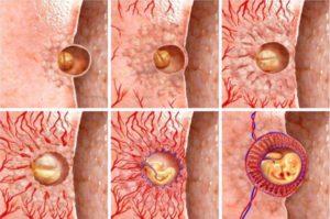 Как после подсадки эмбрион прикрепляется к матке
