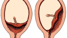 Эмбрион прикрепился к задней стенке матки