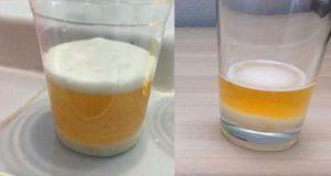 Тест с мочой и содой на беременность отзывы
