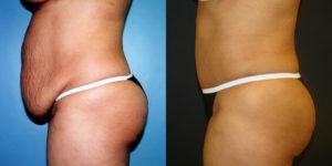 Обвисший живот после родов как убрать фото до и после