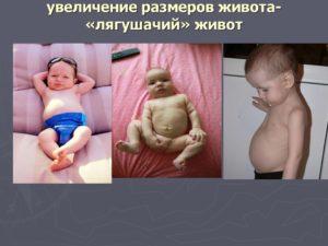 Лягушачий Живот У Ребенка При Рахите Фото