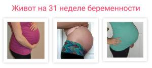 Почему болит живот 31 неделе беременности
