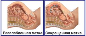 Воздух из матки при беременности на ранних сроках