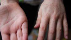 Коксаки Вирус У Детей Фото Симптомы Лечение