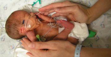 Роды на 34 неделе беременности форум
