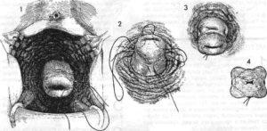 Выделения после наложения швов на шейку матки при ицн
