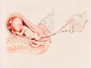 К чему снится замершая беременность