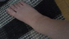 Отеки ног на 37 неделе беременности