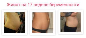 Низ Живота Болит При Беременности 17 Недель