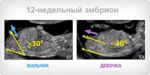 12 Недель Беременности Можно Узнать Пол Ребенка