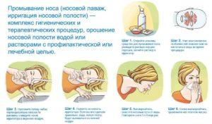 Промывание носа фурацилином при беременности