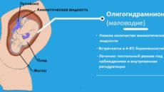 Маловодие при беременности 36 недель что делать