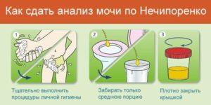 Как сдать мочу после родов без крови со швами