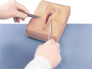 Когда снимают швы после эпизиотомии