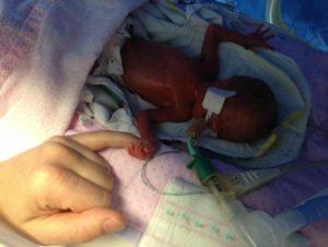Фото Ребенка На 25 Неделе Беременности Фото